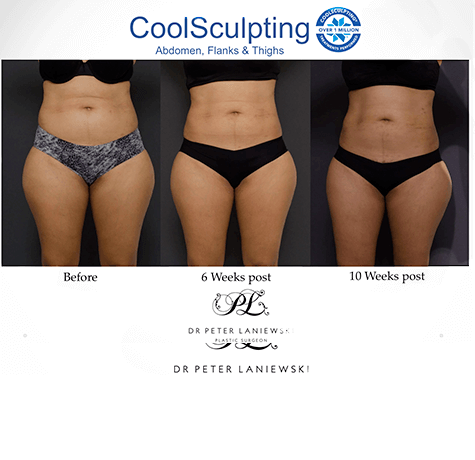 Body CoolSculpting at Dr Laniewski clinic, before and after photo 01