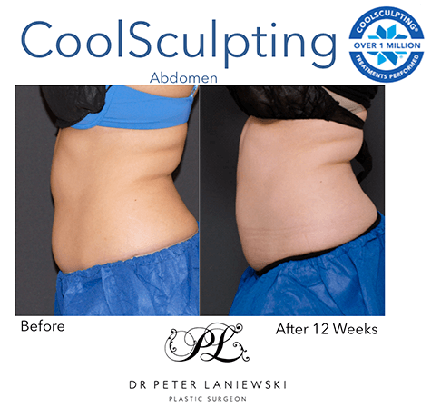 CoolSculpting before and after, photo 11, female patient, side view
