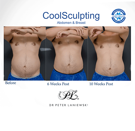 Male body CoolSculpting before and after, photo 02