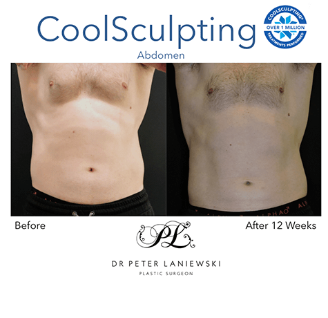 Male patient, body coolsculpting before and after, photo 03