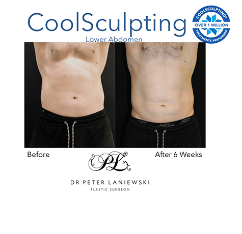 Male CoolSculpting before and after, photo 05, front