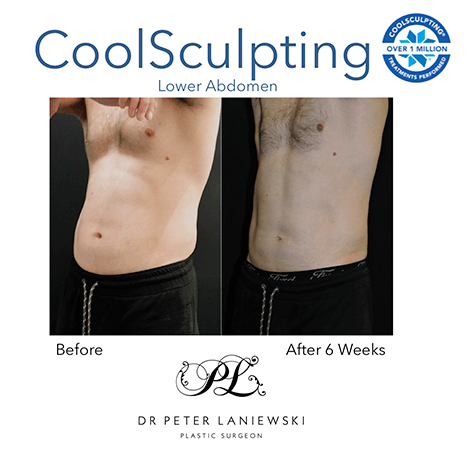 Fat freezing before and after, photo 06, male patient