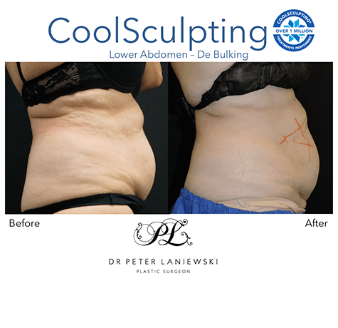 Female CoolSculpting, before and after photo 07