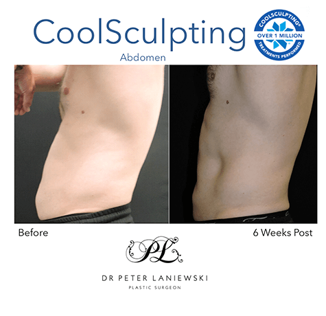 Fat freezing before and after, photo 08, male, side view