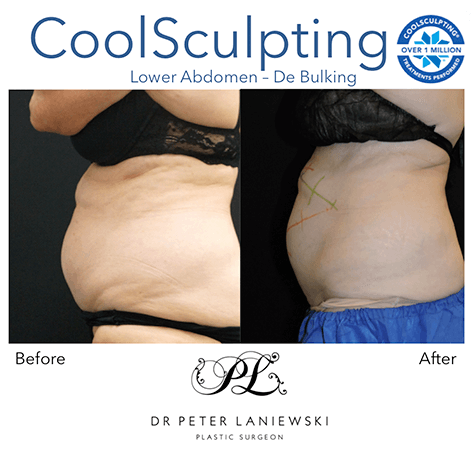 Body fat freezing, before and after photo 09, female patient, Dr Laniewski