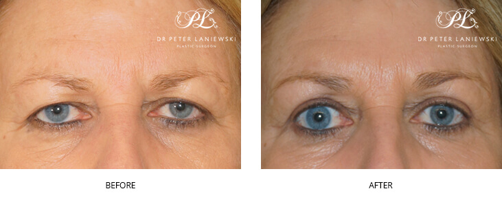 eyelid surgery before and after - image 005