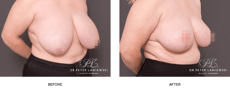 breast reduction before & afters gallery, patient 01b, 45 degree view