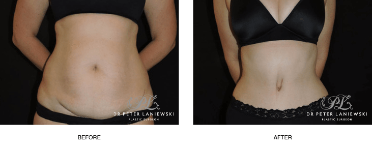 Abdominoplasty patient 01 before and after surgery, photo 01, front view