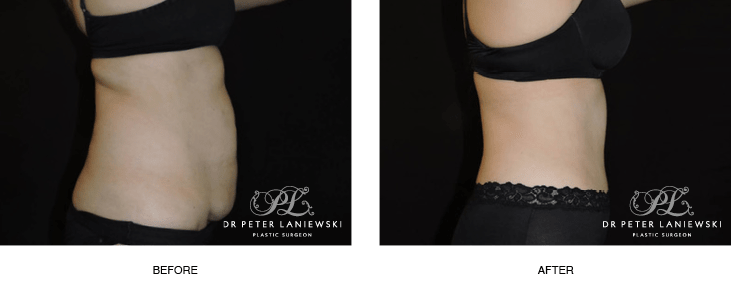 tummy tuck before and after photos - patient 002, image 02, side view
