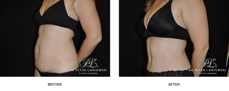 Tummy tuck (abdominoplasty) surgery before and after patient, photo 03, side view