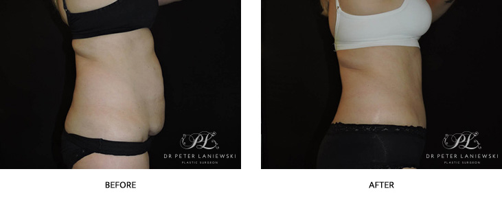 Tummy tuck before and after, abdominoplasty surgery, photo 05, side view
